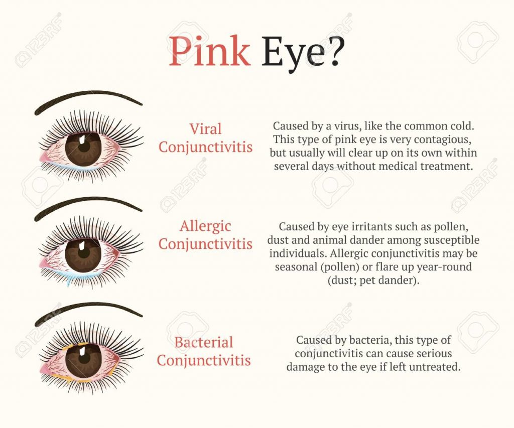 Conjunctivitis, pink eyes. Eye disease. Ophthalmology flat vector health illustration. Most common conjunctivitis types.